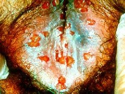 Vulva (external female genitalia) with ulcers